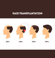 cartoon hair transplant surgery card poster vector image vector image