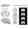 dementia Alzheimer disease vector image vector image