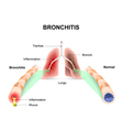 Bronchitis vector image vector image