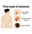 three types of melanoma vector image vector image