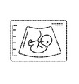 dotted shape ultrasound of baby with umbilical vector image vector image