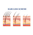 hair loss scheme vector image vector image