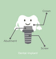 structure of the dental implant with all parts vector image vector image
