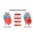 heart attack and atherosclerosis stages healthy vector image