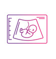 line ultrasound of baby with umbilical cord vector image vector image