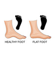 feet healthy and flat feet footprint vector image vector image